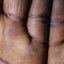 2. Queratodermia de las palmas foto