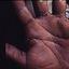 4. Queratodermia de las palmas foto