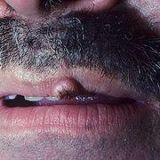 Queratodermia del labio