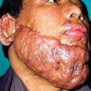 Cicatriz queloide