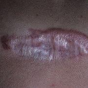 Cicatrices queloides