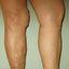 11. Varices en las piernas con el embarazo foto