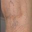 6. Varices en las piernas con el embarazo foto