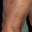 7. Varices en las piernas con el embarazo foto